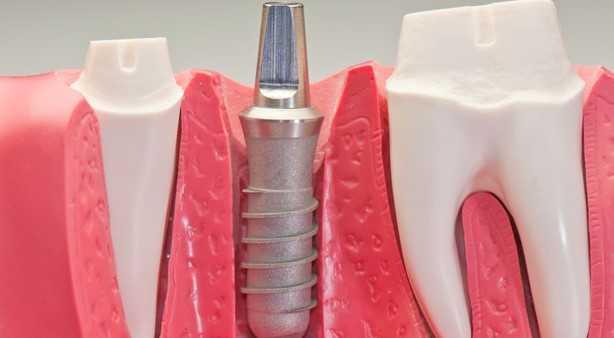 implant - Emekliler Kaç Yılda Bir Diş Yaptırabilir? SGK Protez Hakkı